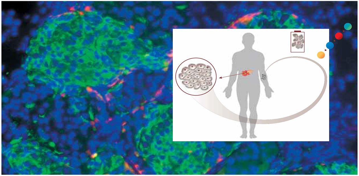 клеточная терапия артрозов