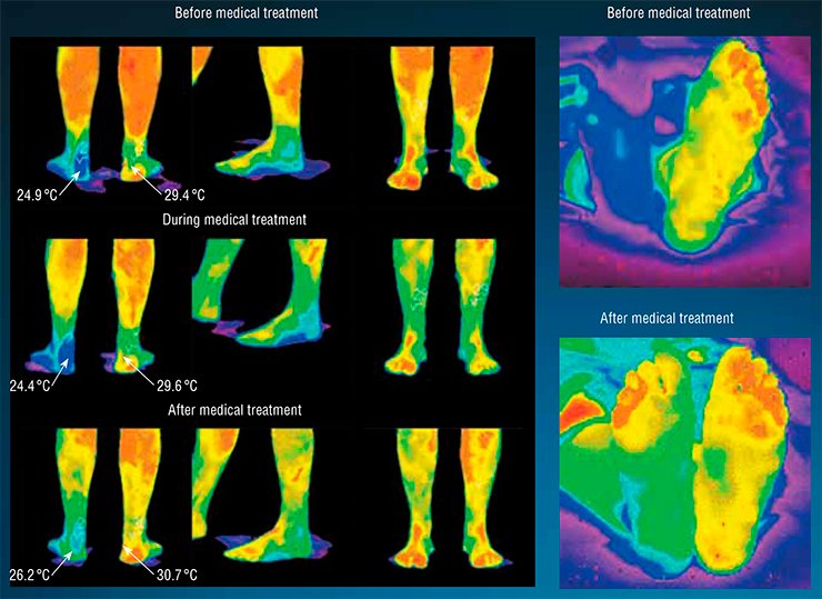 Diabetic foot: the affected foot has a lower temperature than the healthy foot. The increase in temperature after medical treatment testifies to the  recovery of blood circulation in damaged areas and to medical treatment effectiveness. Diabetic foot (the right foot is injured). The increase in temperature, which testifies to the recovery of blood circulation, is clearly visible (right)