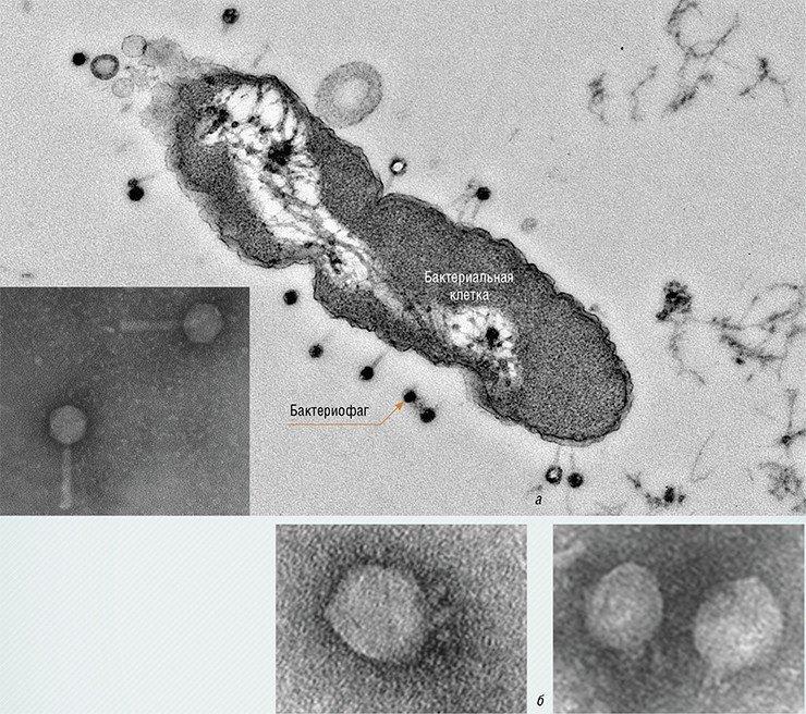 «Хвостатые» бактериофаги, нападающие на бактерию Pseudomonas aeruginosa (синегнойную палочку) (а) и бактериофаги, инфицирующие бактерии Proteus mirabilis (б), вызывающие заболевания мочеполовых органов, в том числе простатит, цистит и пиелонефрит. Электронная микроскопия. Фото Е. И. Рябчикова