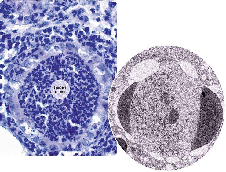 Слева: Светооптический препарат легкого мыши, зараженной вирусом гриппа. Просветы двух мелких бронхов «забиты» разрушенными клетками и лейкоцитами, клетки эпителия повреждены. В окружающей бронхи ткани легкого – интенсивное воспаление. Справа: Апоптоз («самоубийство») ядра клетки, зараженной вирусом гриппа. На ультратонком срезе ядра клетки видны характерные «полулуния» конденсированного хроматина (остатки клеточной ДНК), в нуклеоплазме расположены вирусные структуры