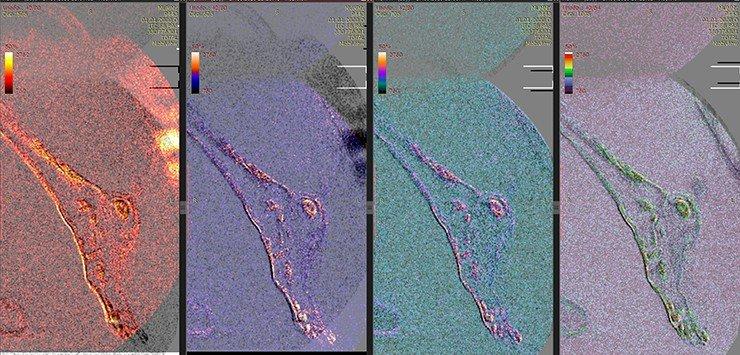 В костях левой стопы – очаги, интерпретированные нами ранее как проявления онкологического метастатического процесса (Letyagin et al., 2014). Очаги выделены с использованием псевдоцветового картирования интенсивности МРТ-сигнала