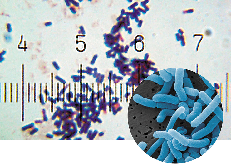 Lactobacteria are used in the production of dairy products as well as probiotics. Their numbers in the human body increase during breastfeeding. Above – Lactobacillus acidophilus, a representative of the normal microflora of the mouth, colon, and vagina; right – L. paracasei, which inhabit the intestines and the mouth cavity. Photo: Bob Blaylock and Horst Neve (Max Rubner-Institut)