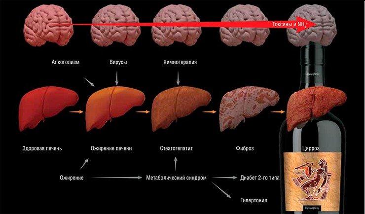 Лечение фиброза печени после гепатита