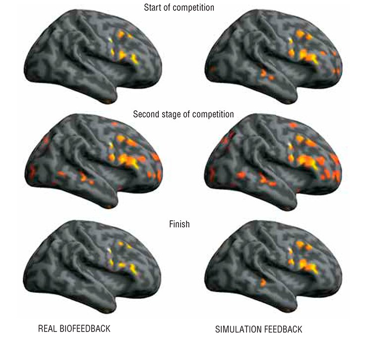 "Vira!: In the modes of real and ""false"" (simulation) biofeedbacks aimed at the cognitive control of the pulse rate, the brain zone activation follows similar patterns although displays some minor differences. In particular, the brain activation zones are considerably enriched in the simulation biofeedback mode as compared with the real feedback mode, namely new neuronal ensembles appear in the cerebellum, fusiform gyrus, pons, stem structures, and some other brain areas. The maximal increase in the activation volume is observed during the second stage of game biofeedback, that is 8 to 12 minutes after involvement into a real or a false game plot. Then, as the game progresses these values decrease considerably. Although both biofeedback modes display similar qualitative patterns, their quantitative details differ considerably"