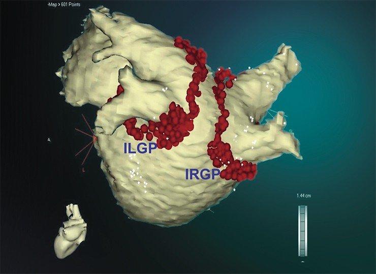 3D-цифровая реконструкция левого предсердия, где красными точками показаны места прижигания электрическим током