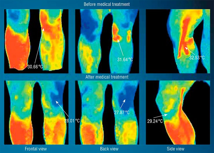 The thermogram helps the physician to control the process of healing of the injury of the left knee