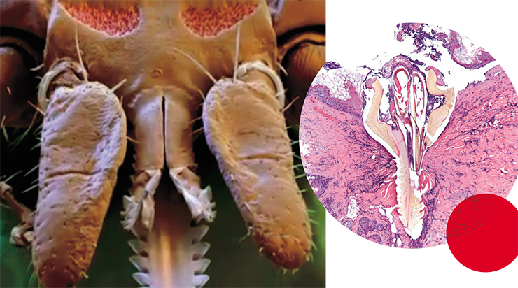 The sophisticated oral apparatus of a sucking ixodid tick (left) works like a pump, making 2–60 acts of suction per minute, which alternate with acts of saliva injection. © CC BY 2.0, photo by Pw95. In the photo right: microscopic image of a tick's mouth with barbs, which has penetrated into the dermis, i. e., the lower layer of the skin, of the animal host. © CC BY 2.0, photo by LozeauMD