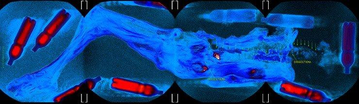 Общий вид 3D преобразования магнитно-резонансных томограмм. Псевдоцветовое картирование выделяет зоны с максимальным содержанием жидкости. Томография выполнялась в режиме 4-stations – видны зоны виртуальной «сшивки» томограмм (каждое поле зрения – 48 см)