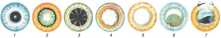 Формы катаракты. 1. Передняя полярная катаракта: в центре зрачка видно ограниченное помутнение серого цвета. 2. Слоистая (зонулярная) катаракта: в центре расширенного зрачка дисковидное помутнение хрусталика. 3. Начальная возрастная катаракта: помутнения в виде стрел, идущих от экваториальной области к центру. 4. Незрелая возрастная катаракта: частичное помутнение хрусталика. 5. Зрелая возрастная катаракта: помутнение всех слоёв хрусталика.  6. Морганиева катаракта: опущение ядра хрусталика вниз (указано стрелкой). 7. Вторичная катаракта: в области зрачка видна плотная плёнка с просветом в центре; границы дефекта радужки указаны стрелками. Источник: Большая медицинская энциклопедия, Главный редактор Б. В. Петровский издание третье, онлайн версия