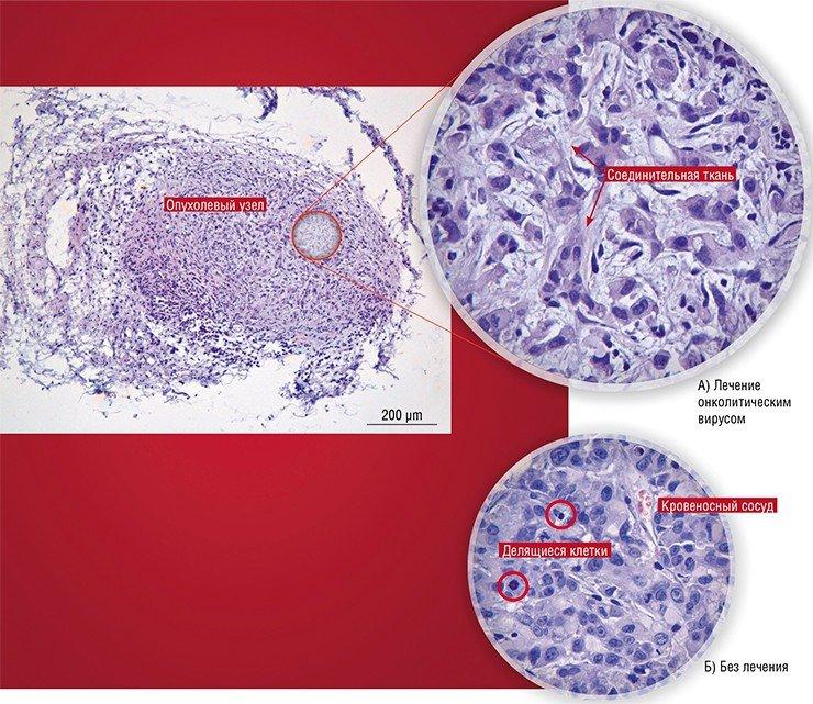 В экспериментах, проводимых в НГУ, ГНЦ ВБ «Вектор» и ИХБФМ СО РАН, лабораторных мышей линии Nude с привитой аденокарциномой человека AsPc-1 заражали онколитическим вирусом Коксаки В-6. Морфологическое исследование опухолевых узлов показало, что у мышей, получавших лечение, в ткани узла уменьшается число опухолевых клеток, а между ними разрастаются прослойки соединительной ткани (А). У мышей, не получавших лечение, узлы были заполнены активно делящимися опухолевыми клетками, соединительная ткань отсутствовала (Б). Фото Е. Рябчиковой (ИХБФМ СО РАН, Новосибирск)