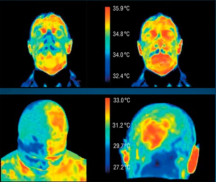 "The increase in the temperature of the face of a healthy test person in five minutes after swallowing the ""Yantar antitoks"" (Amber antitox) biologically active additive (right) occurs owing to improvement of blood circulation. Malignant neoplasms are characterized by an elevated temperature; therefore, the face thermogram ensures localization of tumors in the cases of the Hodgkin's disease (left) and meningioma (right)"