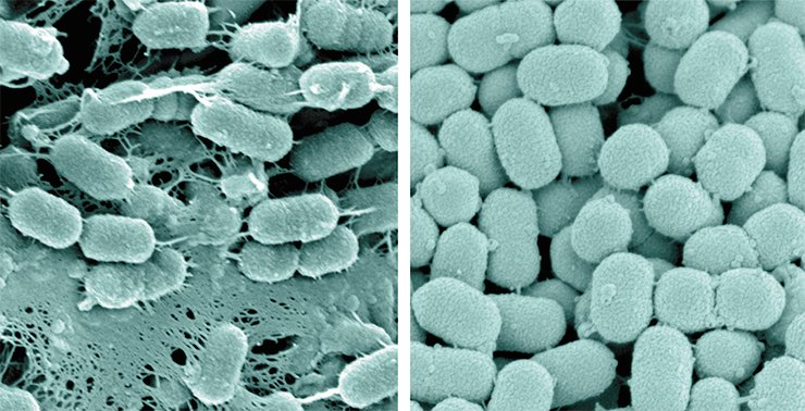 "An electron microscopy image of a bacterium belonging to the genus Prevotella, one of the microorganisms determining the human enterotype. One of the strains of these bacteria (left) forms peculiar ""networks"" which are likely to assist their attaching to intestinal walls. Another strain (right) does not form such structures, which in no way prevents it from flourishing in our intestines"
