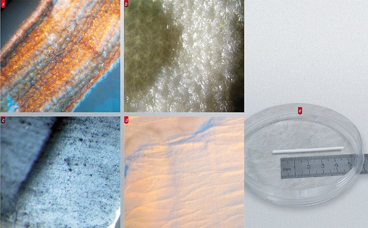 The inner surface of synthetic vascular prostheses used in current surgical practice is very rough, hairy, and unable to maintain the development of a normal cell layer unlike the prostheses produced by electrospinning: (a) an Intergard knitted prosthesis; (b) a Vascutek knitted prosthesis of lavsan; (c) a GoreTex teflon prosthesis; (d) an electrospun prosthesis of nylon; and (e) a whole electrospun vascular prosthesis of	polycaprolactone. Light microscopy. Photo by the courtesy of A. Lebedeva