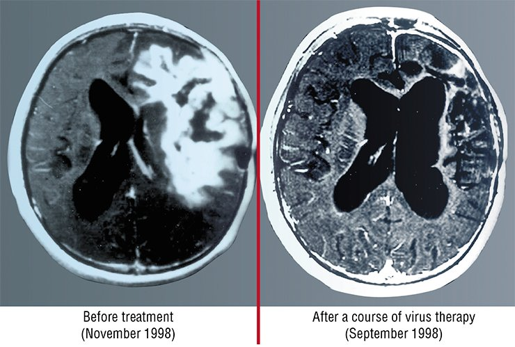 These tomograms demonstrate one of the most astonishing cases of recovery from cancer with the help of virus therapy, reported by the Journal of American Medical Association (JAMA) in 1999. The patient was a boy of 15 with glioblastoma, the most dangerous and rapidly developing brain tumor. The therapy with Newcastle disease virus was used, since the tumor occupied a considerable part of the brain and no other therapeutic intervention was applicable. According to oral communication of one of the authors, this patient is still alive and successfully works. (Csataryand, Bakacs, 1999)