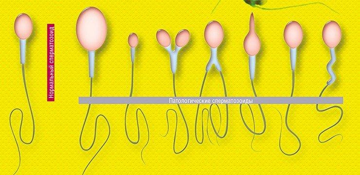 Фото море мужских сперматозоидов — photo 6