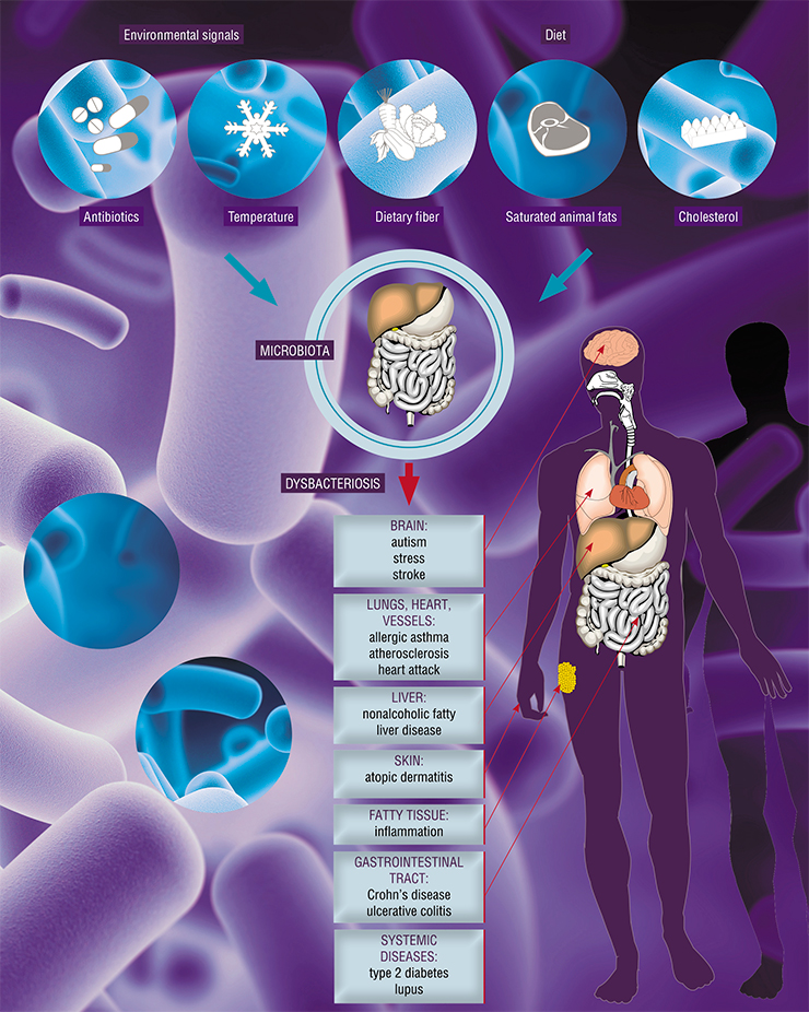 Imbalance of intestinal microbiota is connected to disorders not only of the digestive tract, but also of other organs, too, as well as systemic and oncological disorders and various inflammatory processes. Based on: (Schroeder & Bäckhed, 2016)