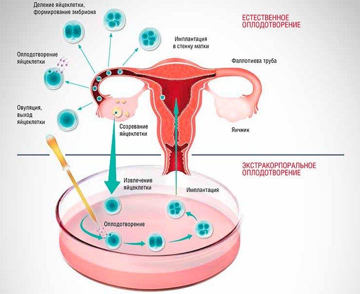 Очистки спермы и эко