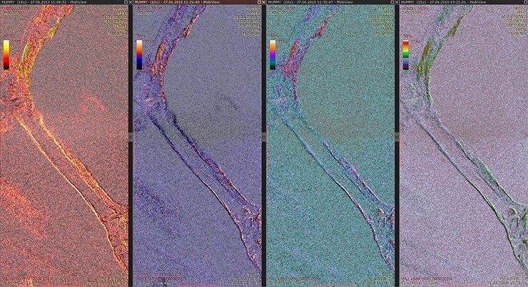 Структура костей левой голени достаточно гомогенная, а в дистальной части левой бедренной кости выявляются очаги отечно-склеротических изменений, что соответствует остеосклеротическим последствиям остеомиелитического процесса в подостро-хронической фазе. Очаги выделены с использованием псевдоцветового картирования интенсивности МРТ-сигнала