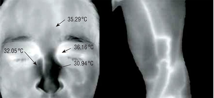 "The thermogram can be used for diagnostic purposes: the inflammatory process in the Highmore antrum is evidenced by the temperature asymmetry in the nose region (left); the varicose disease is evidenced by the varicose veins of the lower limb, which are ""marked"" by high temperature (right)"