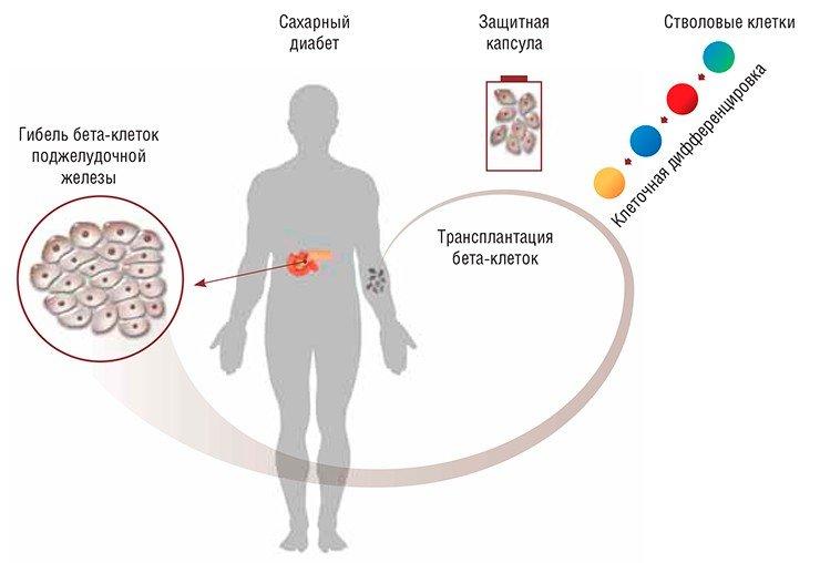 saharniy-diabet-klassifikatsiya-lechenie