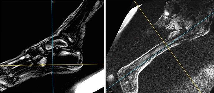 Томограммы костей и суставов левой нижней конечности – субхондральные диффузные отечно-эррозивные изменения суставного хряща головки бедренной кости.В дистальной части диафизарной полости левой бедренной кости (справа) – отечно-склеротические очаги; в патоморфологическом плане эти изменения более всего соответствуют остеосклеротическим последствиям остеомиелитического процесса в подостро-хронической фазе. Изменения левого коленного сустава укладывается в МР-картину дегенеративно-дистрофических изменений с низкоэнергетическими отеками по типу остеоартрита. В костях левой стопы (слева) – очаги с отечной периферией и с МР-плотными (темными) центральными зонами, интерпретированные нами ранее как проявления онкологического метастатического процесса (Letyagin et al., 2014) в сочетании с дегенеративно-дистрофическими изменениями по типу остеоартрита с низкоэнергетическими отеками
