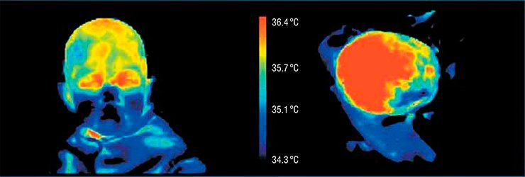 Being hit on his head from the left side, this patient had an injury on the right side. The bruise is seen in the thermograms of two projections of the patient's head as lower temperature area. In this way, the injured area to be operated was determined